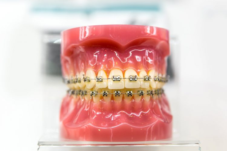 ceramic-braces-dublin