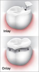 dental-inlays-dublin