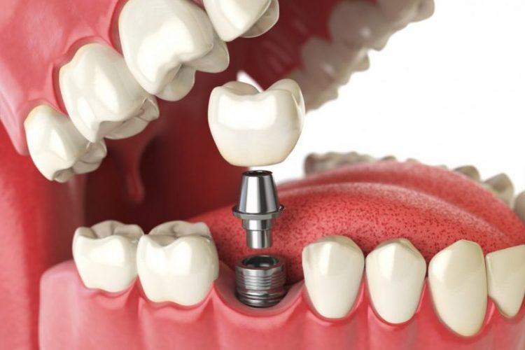 periodontist-dublin